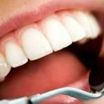 cellule-staminali-dentali-