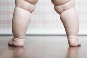 Obesità e sovrappeso