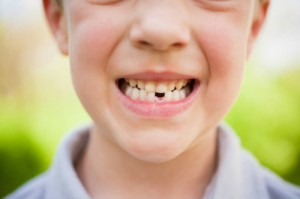 Affollamento dentale bambini