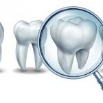 Polizza assicurativa dentistica