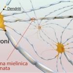 Sclerosi multipla - Ranghos
