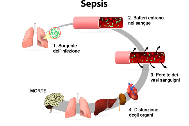 setticemia - photo #19