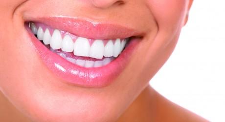 Ritocchi estetici dal dentista