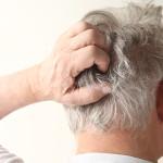 Dermatite seborroica sul cuoio capelluto