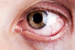 Sindrome dell'occhio secco
