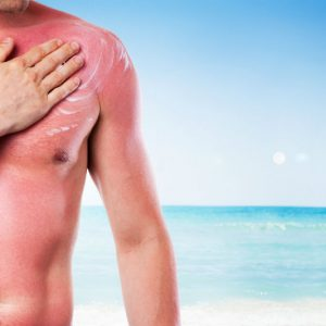 Allergia al sole