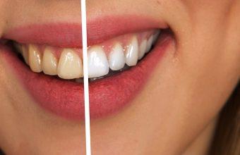 Macchie sui denti