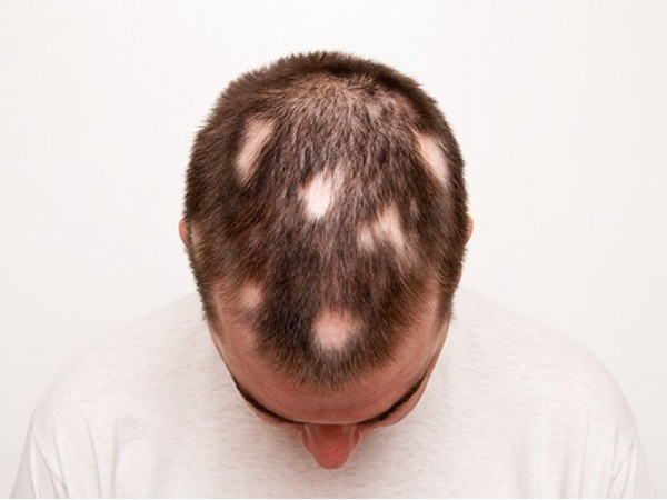 What Can Cause Bald Spots On Dogs